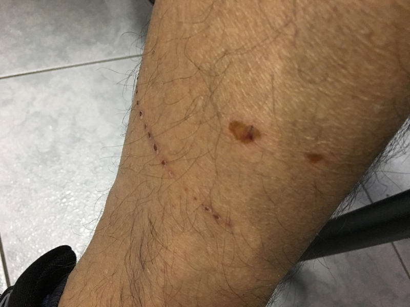 Dog bite rabies story Ecuador Deon Braun